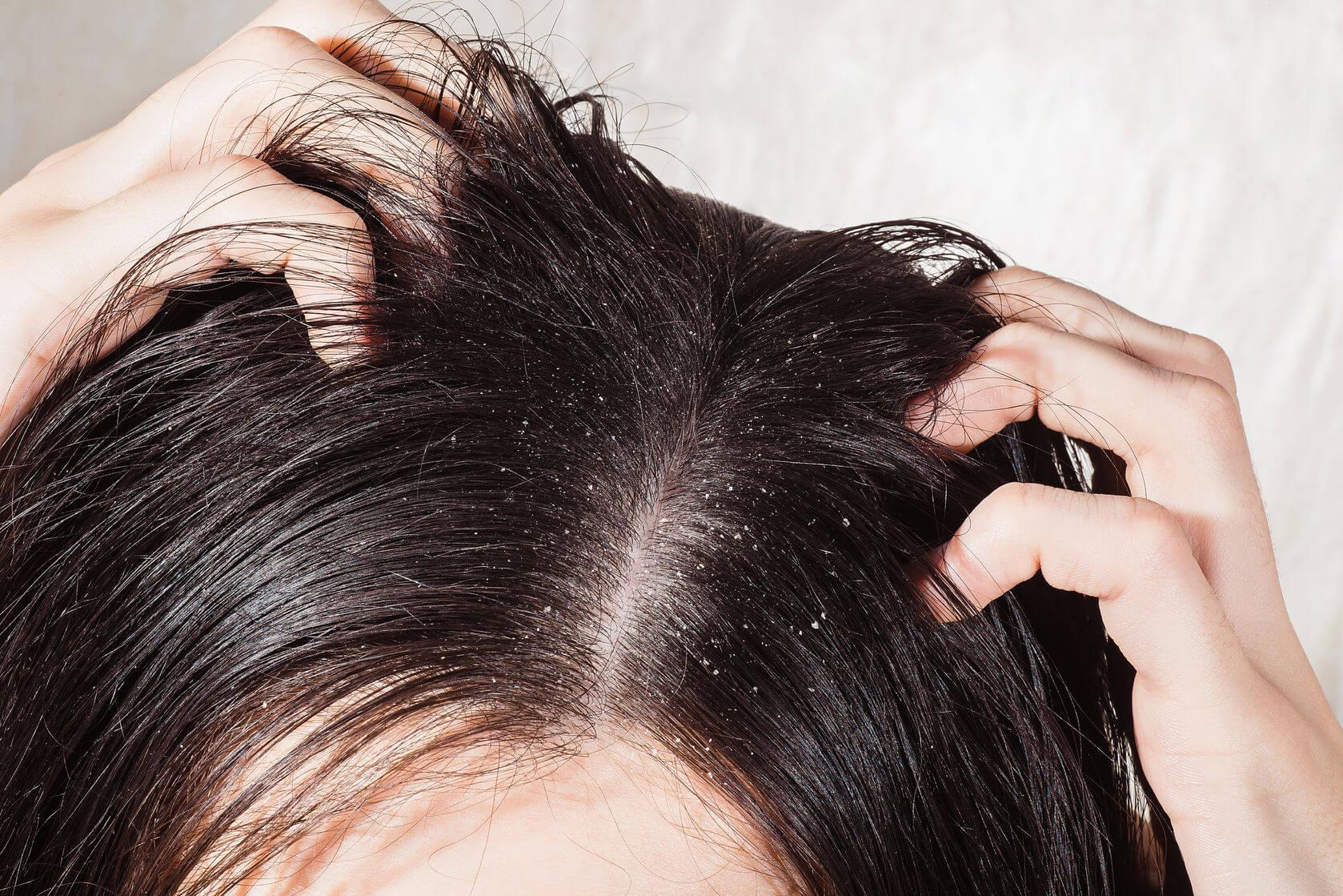 Dầu gội trị rụng tóc cho da khô