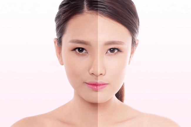 thiếu hụt collagen khiến làn da bị lão hoá