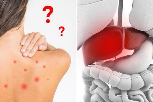 mối liên hệ giữa nóng gan và nổi mụn